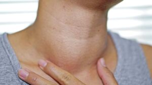 Enlarged lymph nodes after COVID-19 vaccination could be mistaken for cancer- Technology News, FP