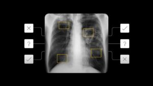 AI tool to detect active pulmonary tuberculosis announced- Technology News, FP